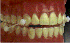snore_dental